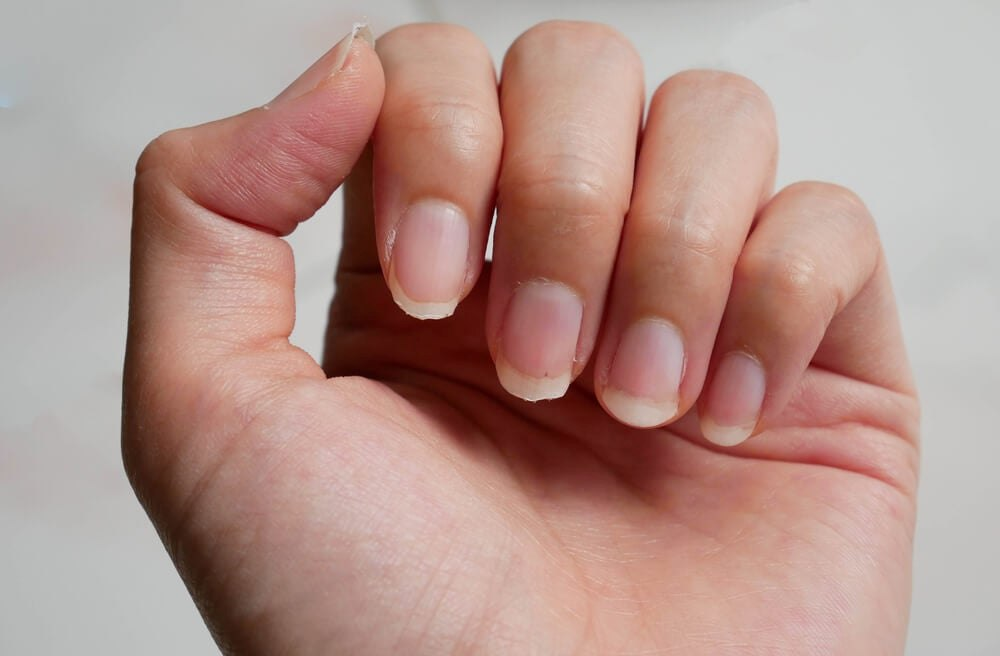 Por qué salen estrías en las uñas