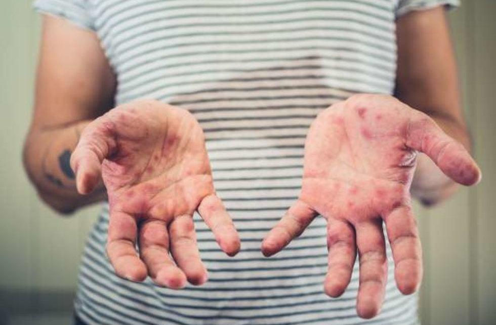 Descartan riesgo de epidemia de sarampión en México
