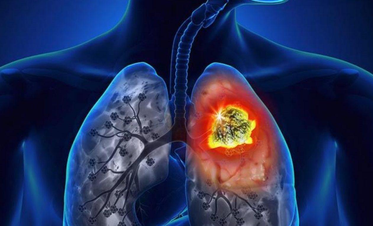 Descubren tratamiento que reduce cáncer de pulmón en 80% de pacientes