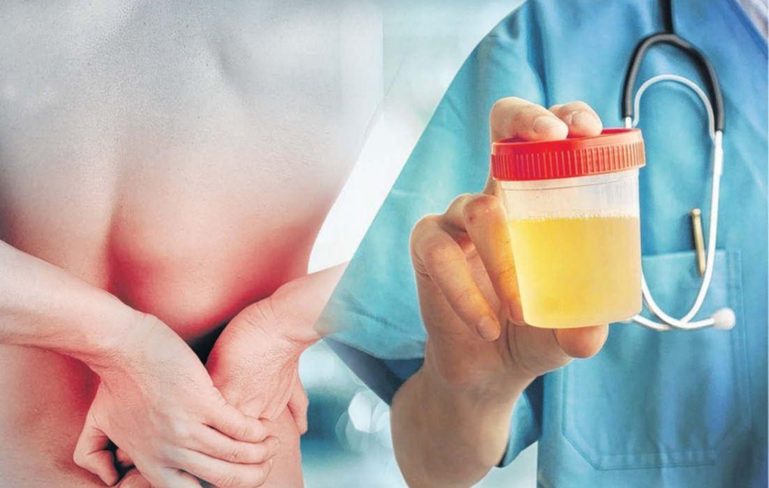 En color de la orina se puede detectar enfermedades renales o diabetes: IMSS