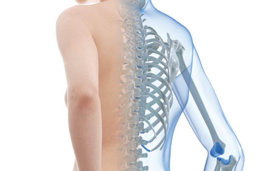 Dos millones de mexicanas padecen osteoporosis