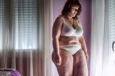 Obesidad,  un grave problema de salud pública