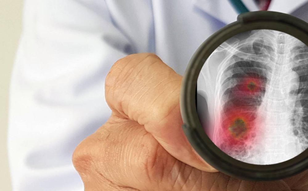 Primer probable caso de coronavirus en Oaxaca