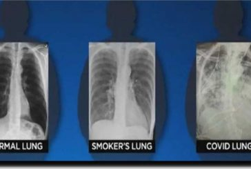 Pulmones post-COVID lucen dramáticamente peor que de pacientes fumadores
