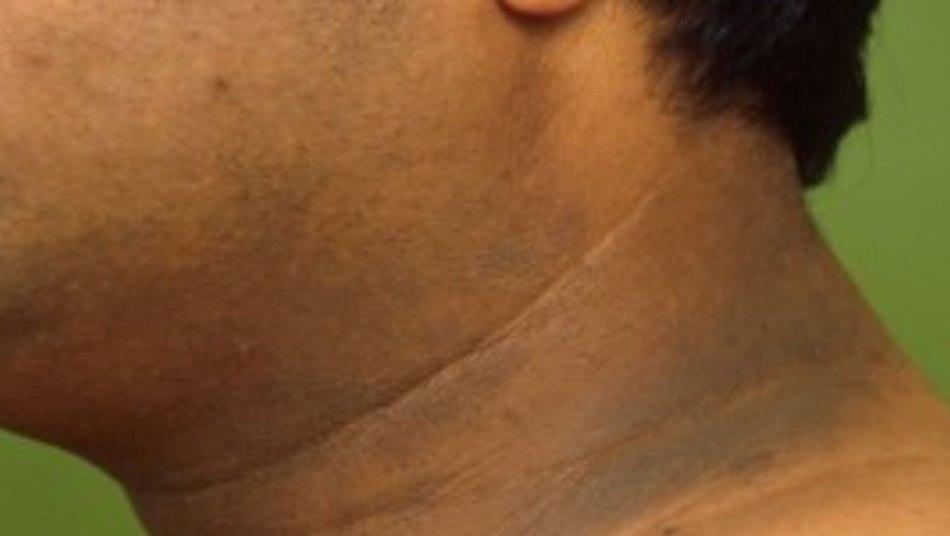 IMSS: manchas obscuras en el cuello, signo de diabetes mellitus y obesidad
