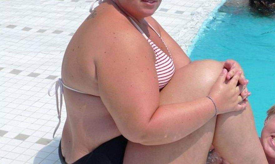 Grasa abdominal incrementa riesgo de ataques cardiacos recurrentes