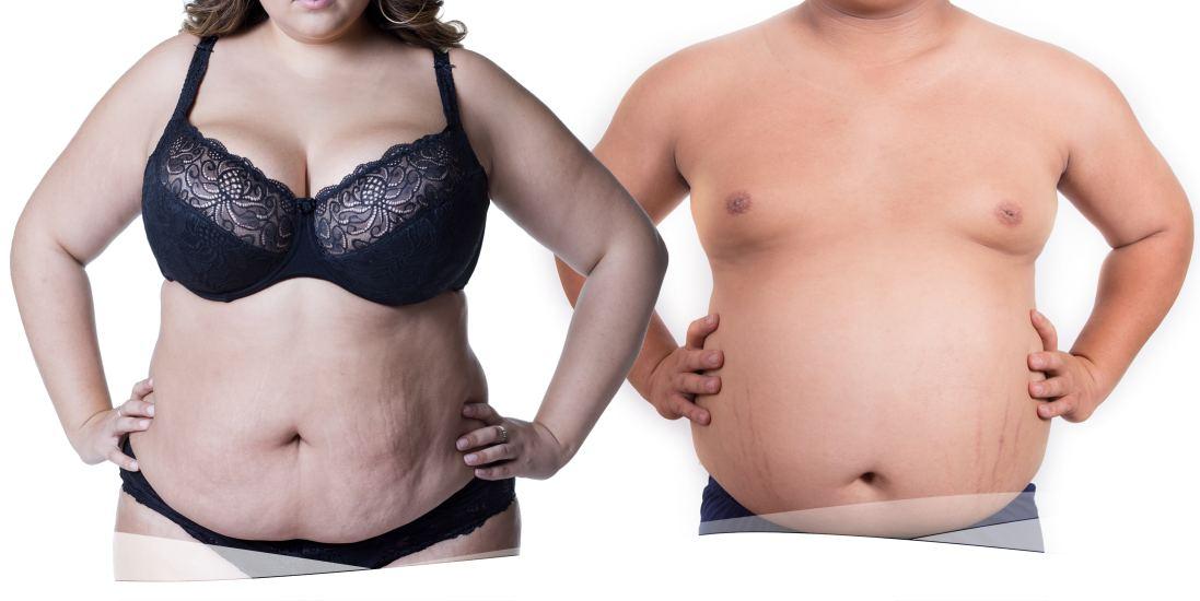¿En qué zonas del cuerpo es más peligroso que haya grasa?